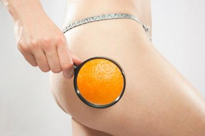 Cellulit – to też twój problem?