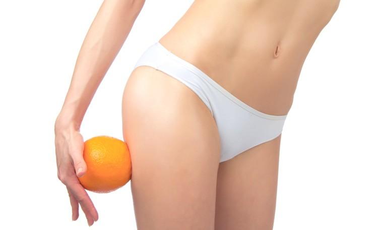 Cellulit wodny, tłuszczowy czy cyrkulacyjny? Rodzaje cellulitu.